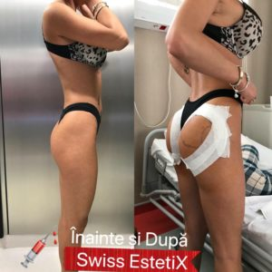 BUTTOCK AND BREASTS AUGMENTATION WITH AQUA FILLING