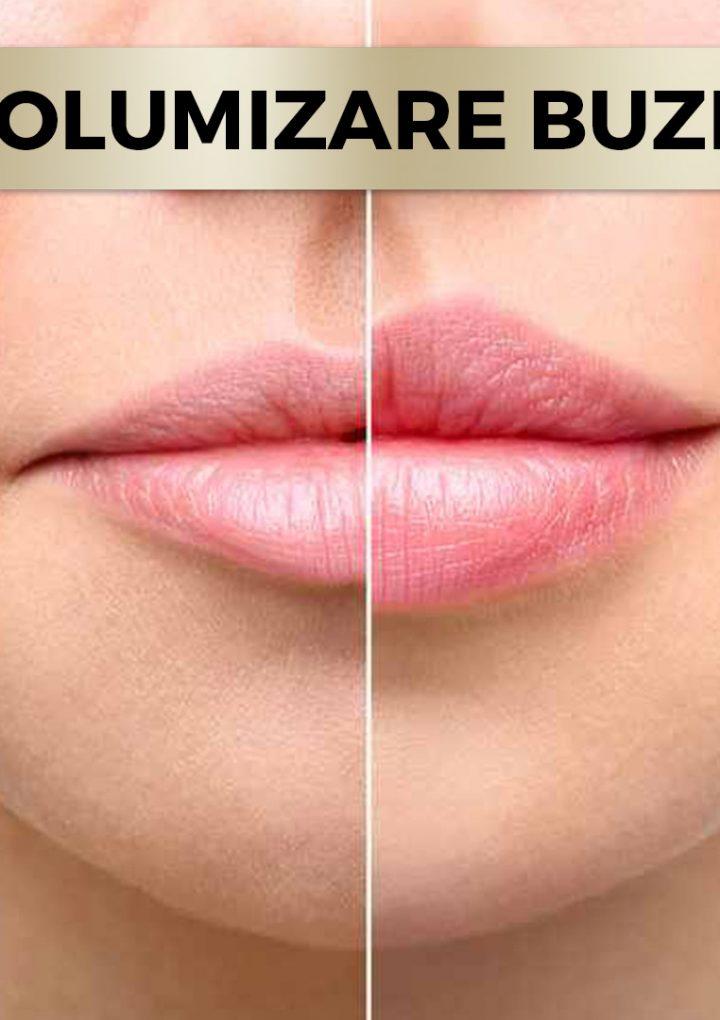 Marirea buzelor cu acid hialuronic in topul preferintelor clientilor
