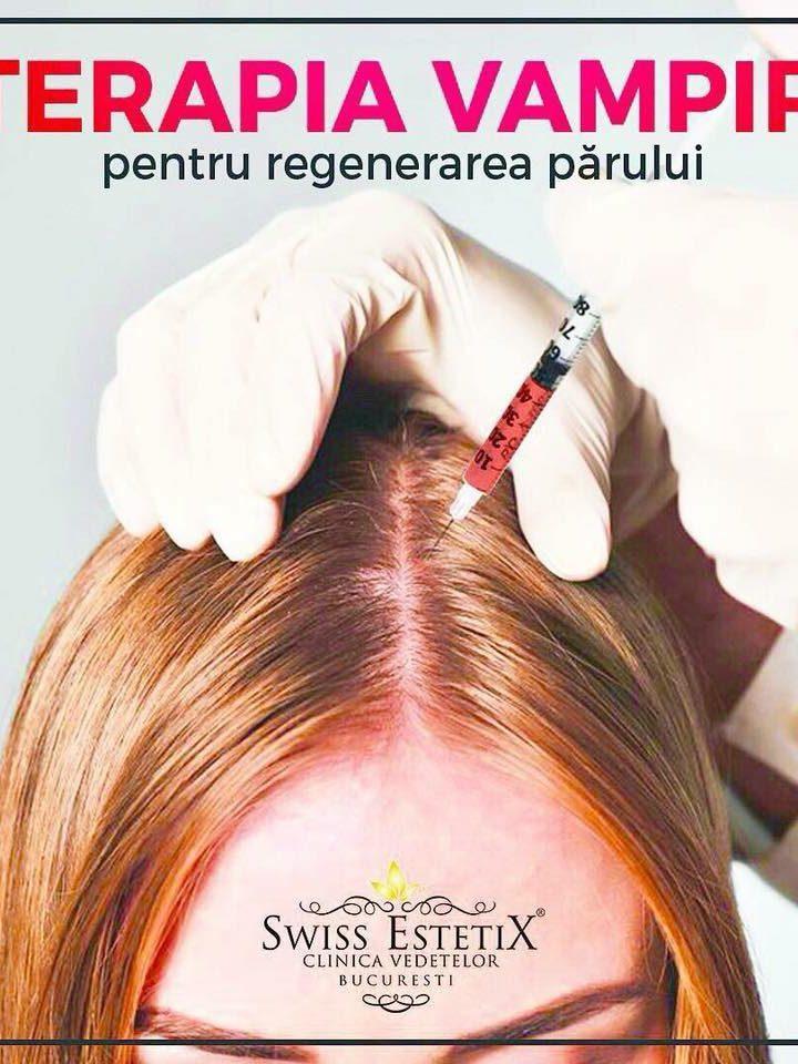 Terapia Vampir, ideala pentru regenerarea parului! Propriul sange te ajuta sa ai parul mult-visat!