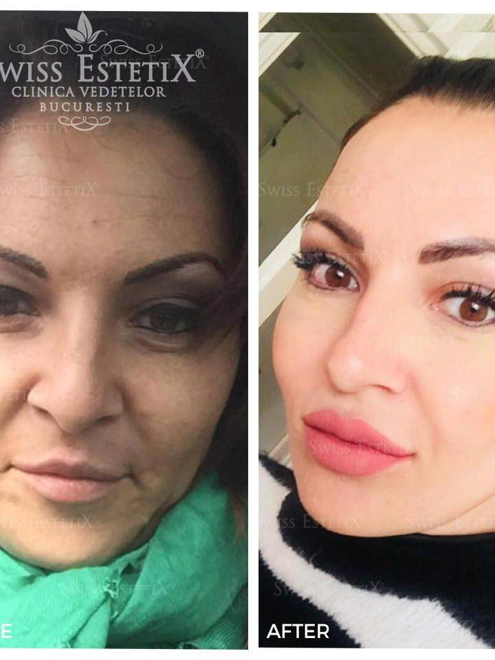 Conceptul Full Face, pentru o transformare completa! Afla totul, direct de la pacienta noastra!