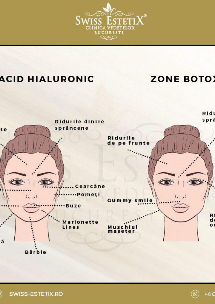 Acid hialuronic vs Botox. Află acum diferenţele!